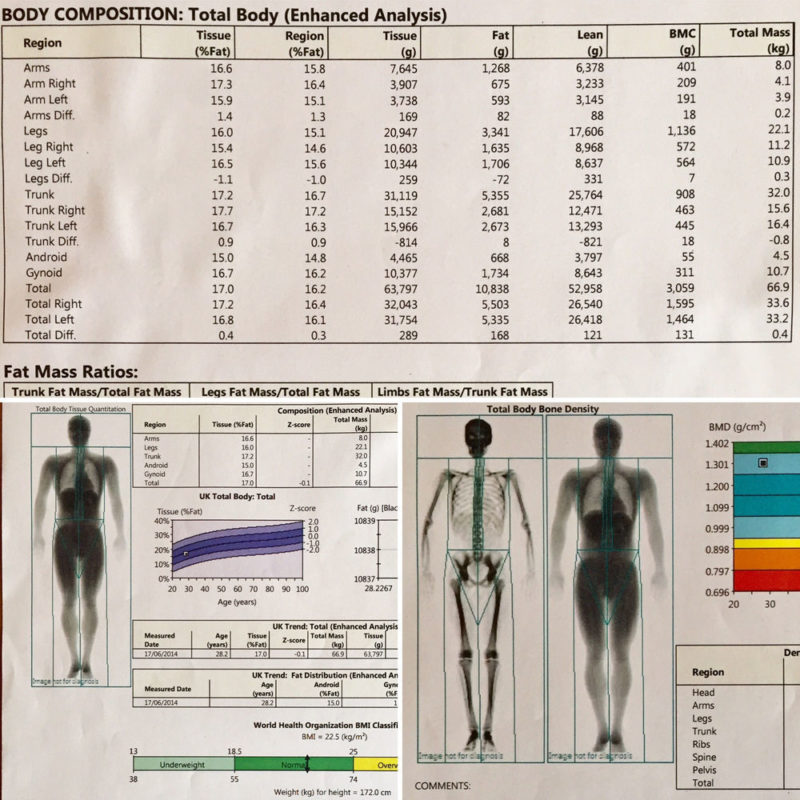 Image shows the read out of a DEXA scan